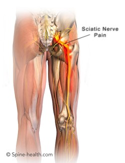 Pad placement pain relief