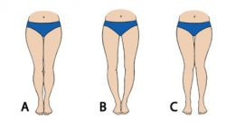 Get the perfectly straight, attractive and shapely legs you've always wanted