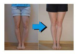No More Bow Legs