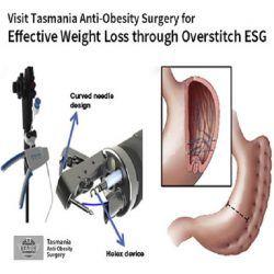 Visit Tasmania Anti-Obesity Surgery for Effective Weight Loss through Overstitch ESG