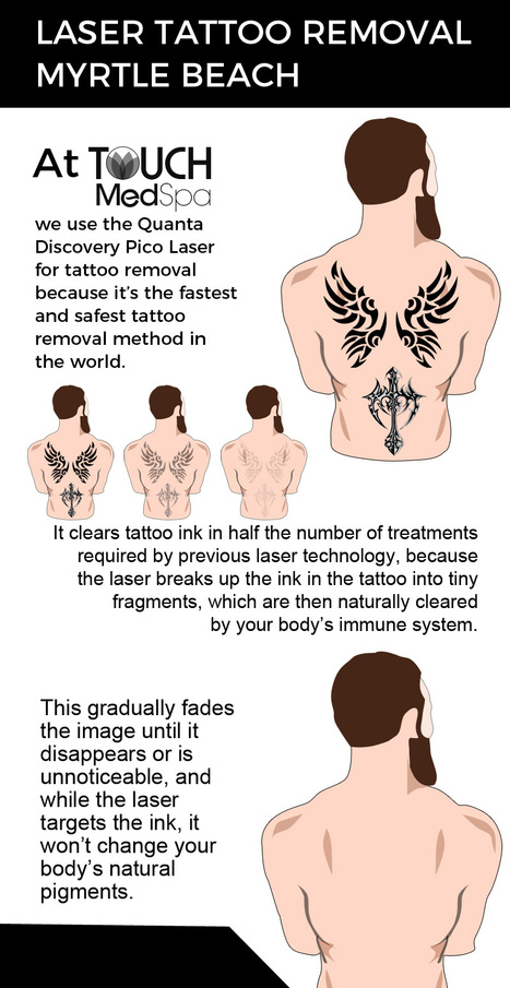 Visit Touch MedSpa for Fast and Safe Laser Tattoo Removal Services