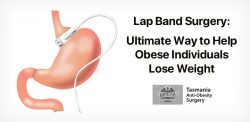 Lap Band Surgery: An Ultimate Way to Help Obese Individuals Lose Weight