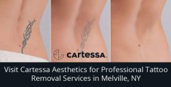 Visit Cartessa Aesthetics for Professional Tattoo Removal Services in Melville, NY