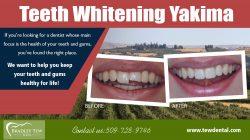 Emergency Cosmetic Dentist | 509728932 | tewdental.com