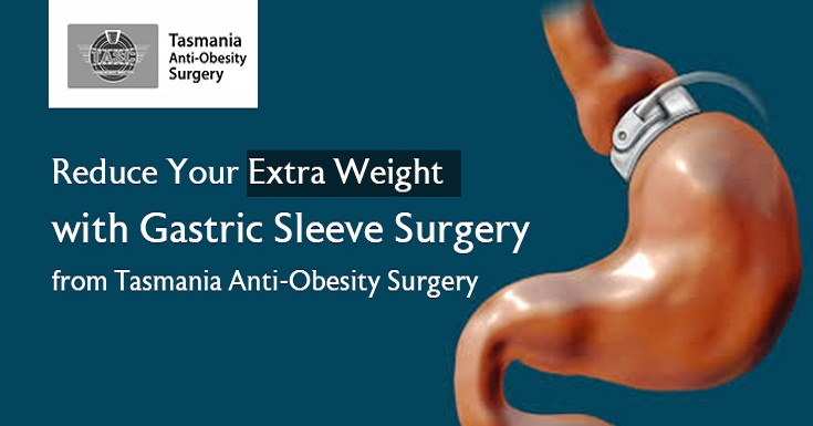 Reduce Your Extra Weight with Gastric Sleeve Surgery from Tasmania Anti-Obesity Surgery
