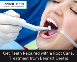 Get Teeth Repaired with a Root Canal Treatment from Bennett Dental