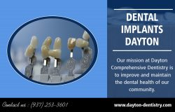 Dental Implants Dayton