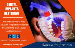 Dental Implants In Kettering