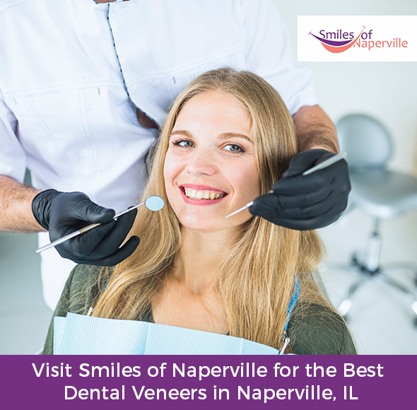Visit Smiles of Naperville for the Best Dental Veneers in Naperville, IL