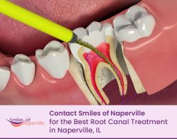 Contact Smiles of Naperville for the Best Root Canal Treatment in Naperville, IL