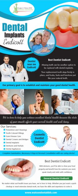 Dental Implants Endicott