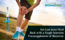 Get Lost Joint Fluid Back with a Single Injection Viscosupplement of Monovisc