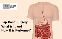 Lap Band Surgery: What is It and How It is Performed?