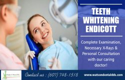 Teeth Whitening Endicott