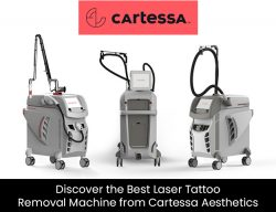 Discover the Best Laser Tattoo Removal Machine from Cartessa Aesthetics