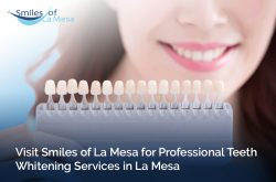 Visit Smiles of La Mesa for Professional Teeth Whitening Services in La Mesa