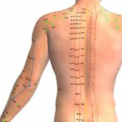 acupuncture treatment in derby