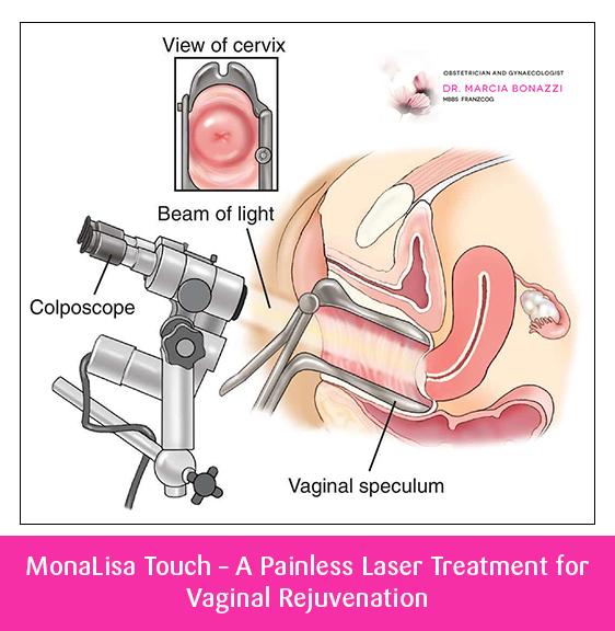 MonaLisa Touch – A Painless Laser Treatment for Vaginal Rejuvenation