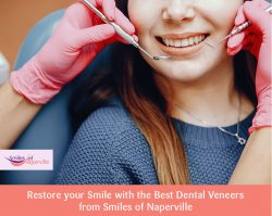 Restore your Smile with the Best Dental Veneers from Smiles of Naperville