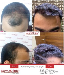 Another dramatic transformation by our flagship patented procedure B.E.S.T. (Bio-Enhanced Simult ...