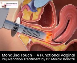 MonaLisa Touch – A Functional Vaginal Rejuvenation Treatment by Dr. Marcia Bonazzi