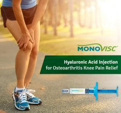 Monovisc – Hyaluronic Acid Injection for Osteoarthritis Knee Pain Relief