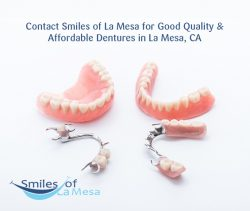 Contact Smiles of La Mesa for Good Quality & Affordable Dentures in La Mesa, CA