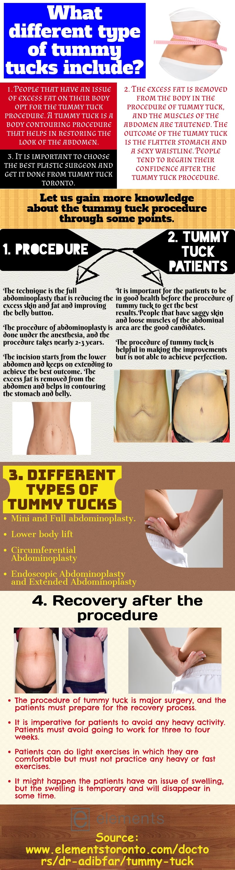 Tummy tucks-Performed by a professional surgeon