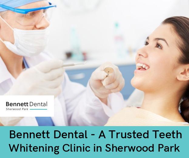 Bennett Dental – A Trusted Teeth Whitening Clinic in Sherwood Park