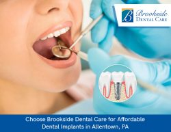 Choose Brookside Dental Care for Affordable Dental Implants in Allentown, PA