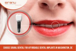 Choose Siranli Dental for Affordable Dental Implants in Washington, DC