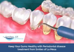 Keep Your Gums Healthy with Periodontal disease treatment from Smiles of La Mesa