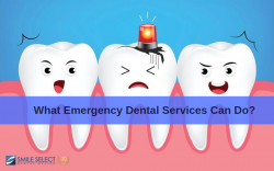 What Emergency Dental Services Can Do? Smile Select Dental