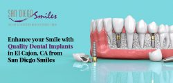 Enhance your Smile with Quality Dental Implants in El Cajon, CA from San Diego Smiles