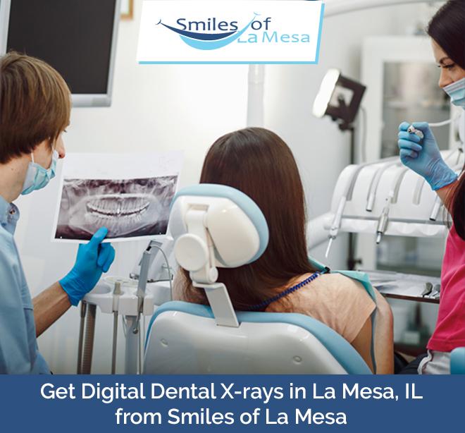 Get Digital Dental X-rays in La Mesa, IL from Smiles of La Mesa