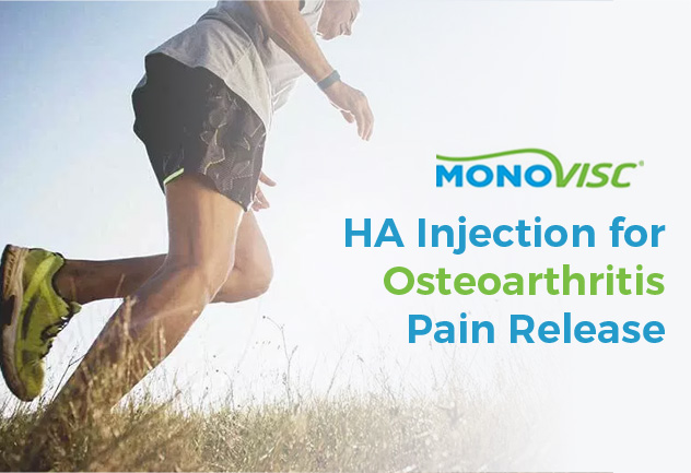 Monovisc – HA Injection for Osteoarthritis Pain Release