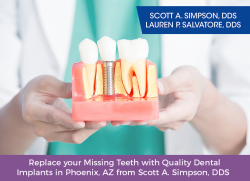 Replace your Missing Teeth with Quality Dental Implants in Phoenix, AZ from Scott A. Simpson, DDS