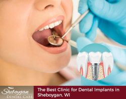 Sheboygan Dental Care – The Best Clinic for Dental Implants in Sheboygan, WI