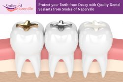 Protect your Teeth from Decay with Quality Dental Sealants from Smiles of Naperville