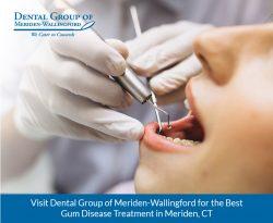 Visit Dental Group of Meriden-Wallingford for the Best Gum Disease Treatment in Meriden, CT