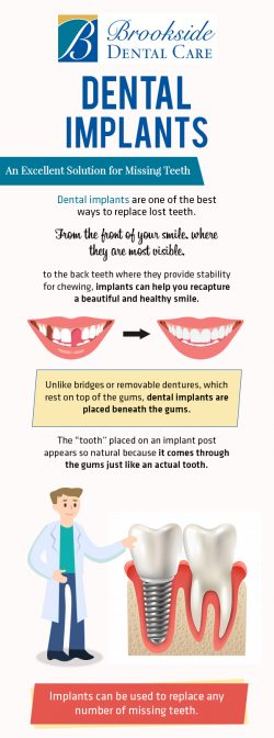 Get An Excellent Solution for Missing Teeth at Brookside Dental Care