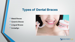 Types of Dental Braces | Smile Select Dental