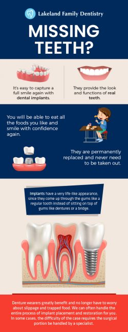Dental Implants by Lakeland Family Dentistry – Natural Looking Solution for Missing Teeth