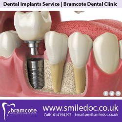 Dental Implants Service | Bramcote Dental Clinic