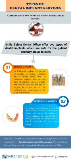 Types of Dental Implant Services