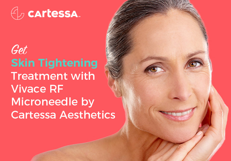 Get Skin Tightening Treatment with Vivace RF Microneedle by Cartessa Aesthetics