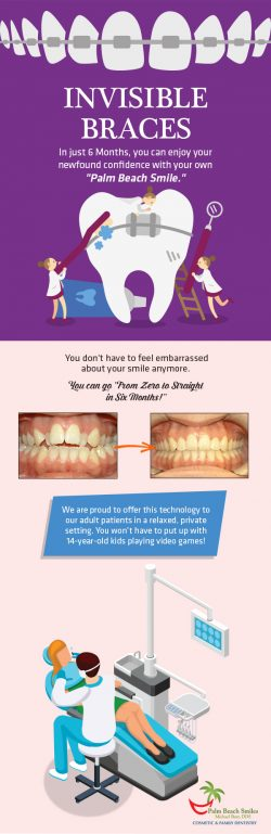 Get Straight Teeth with Six Month Smile Braces from Palm Beach Smiles