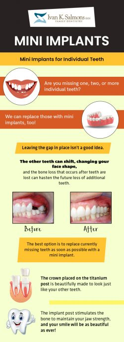 Visit the Dental Clinic of Dr. Ivan K. Salmons, DDS to Replace Missing Teeth with Mini Implants