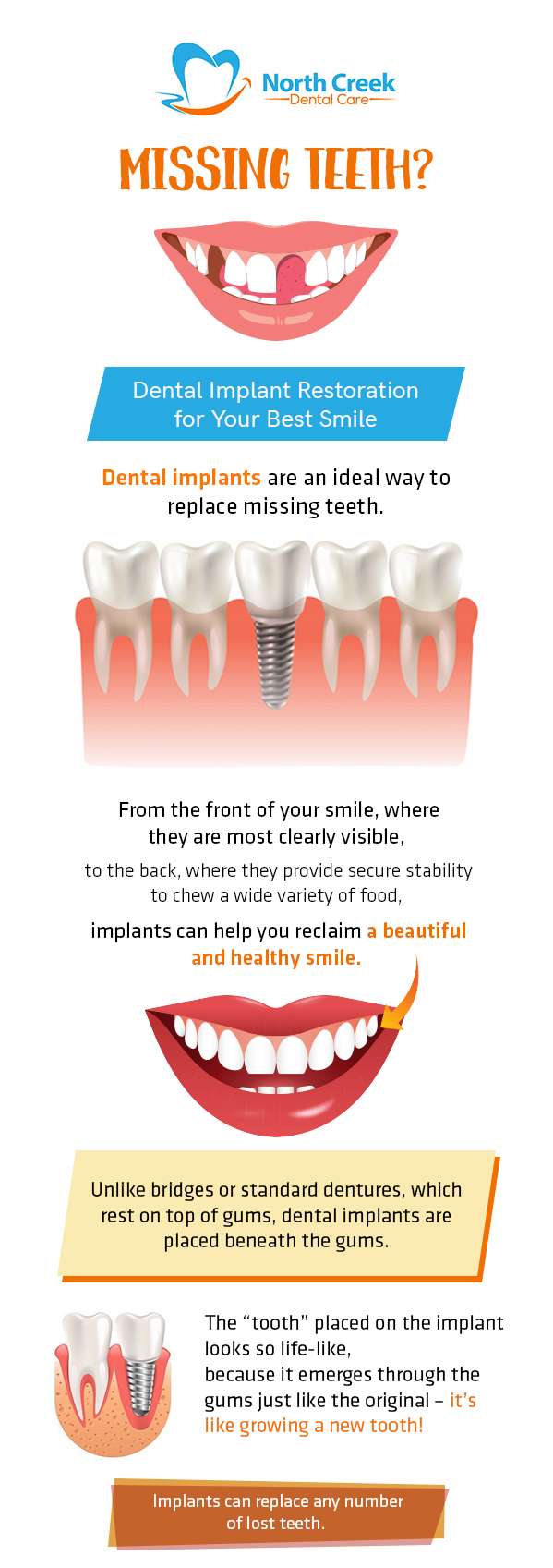 Dental Implants by North Creek Dental Care – An Ideal Way to Replace Missing Teeth