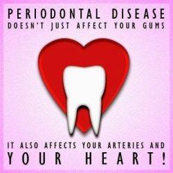 Periodontal Care in California | Smile Select Dental